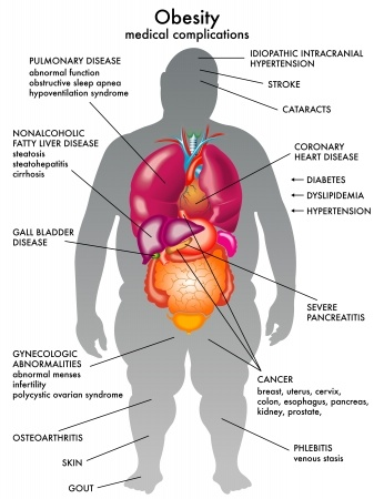 Diagram - Medical Complications of Obesity